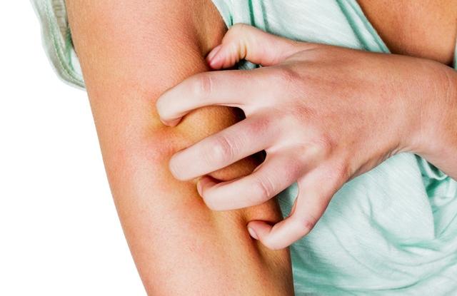 fájdalmas vörös foltok a lábak bőrén hogyan kell kezelni a fejet pikkelysömörrel
