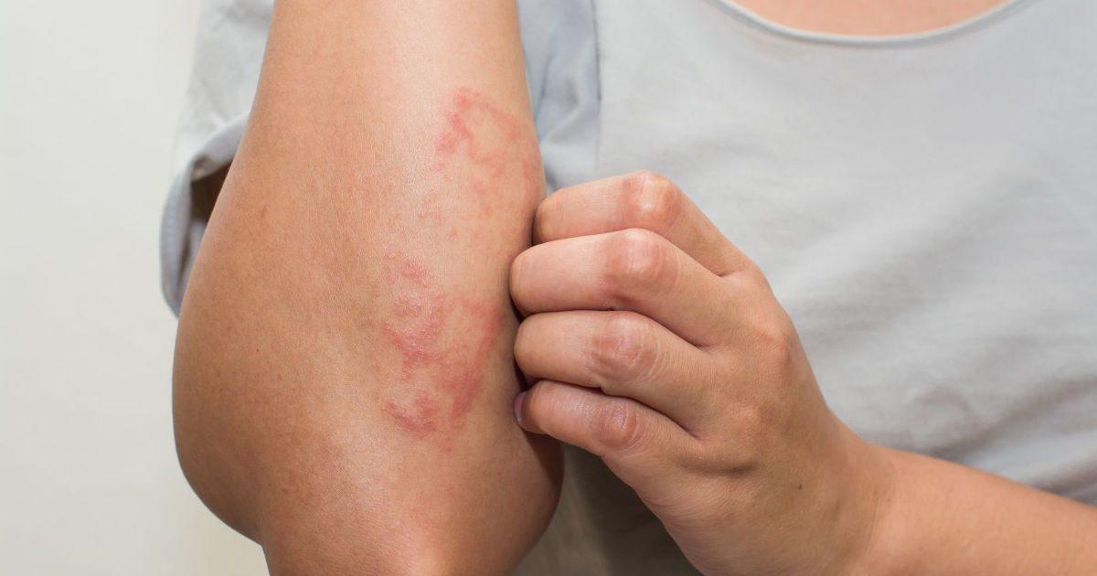az alsó lábszár bőrén vörös foltok nem fájnak