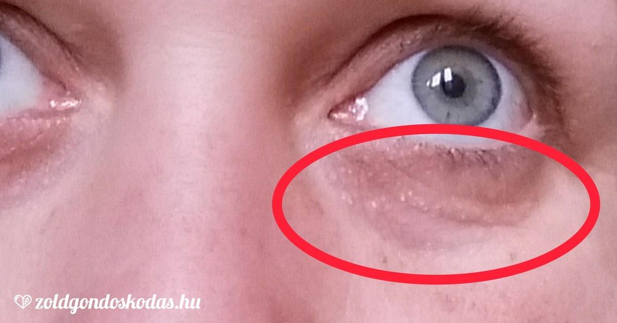 méhcsípés a szem elől kapu látás-helyreállítási módszer