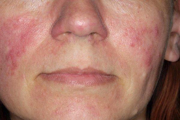 dermatitis a kezeken a testen az arcon vörös foltok formájában